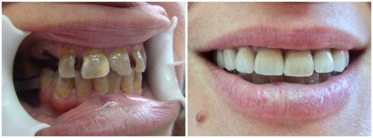Ολική Αποκατάσταση Στόματος 2